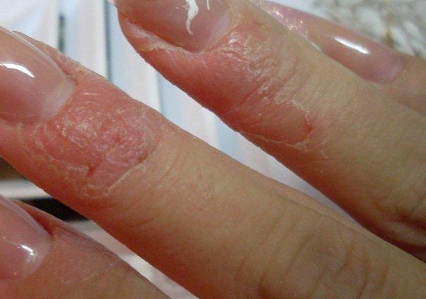 allergiya-na-shellak
