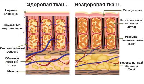 Картинки по запросу гиноидная липодистрофия