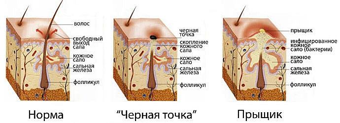 Картинки по запросу сальные железы