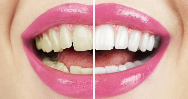 Какяотбелила зубы содой