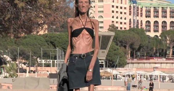 Судьба самой худой женщины планеты