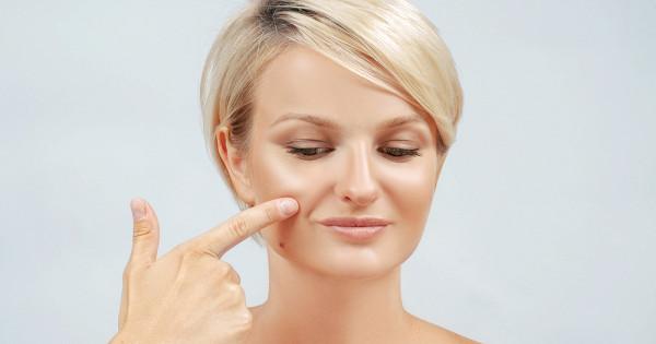 5способов предотвратить появление глубоких морщин