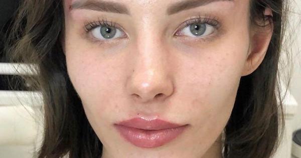 Россиянки массово меняют разрез глаз