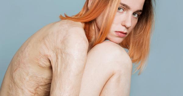 Света Уголек: модель сожогами более 45% тела